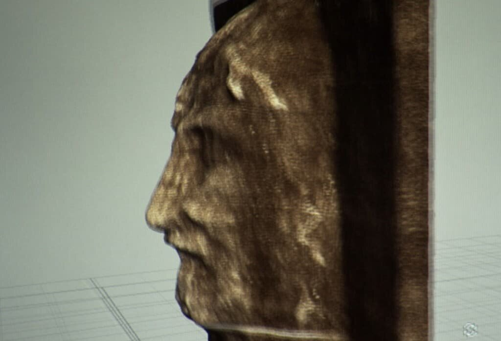 3D Profile of the face in the shroud. History Channel.