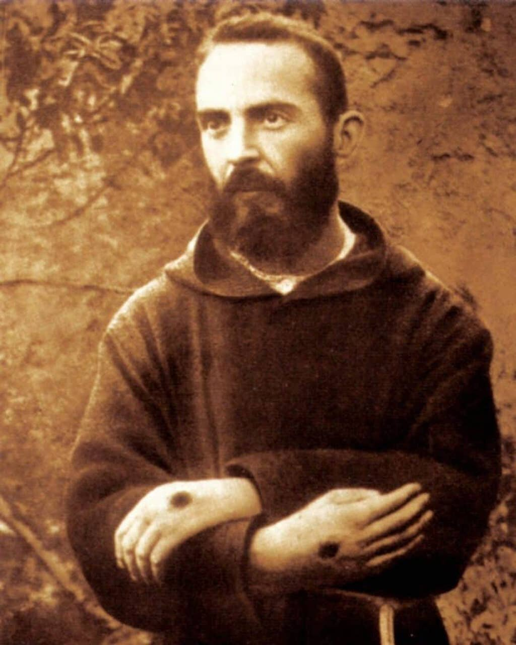 Francesco Forgione is better known as Padre Pio. The stigmata is visible on his hands.