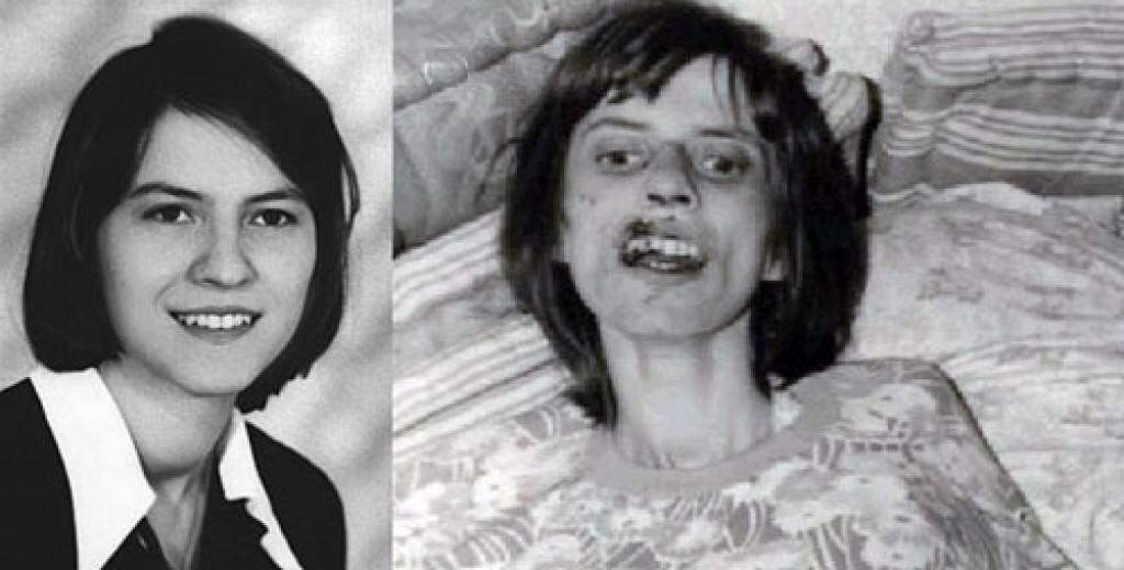 Anneliese Michele before and after. A healthy and young woman vs. close to death