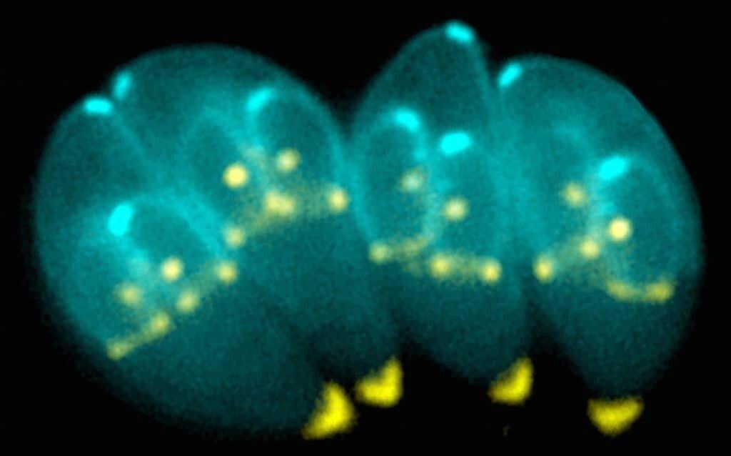 Toxoplasma Gondii.