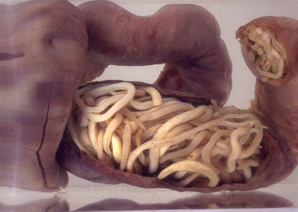 A piece of intestine, blocked by Roundworms, surgically removed from a 3-year-old boy in South Africa dangeroud parasites in himans.