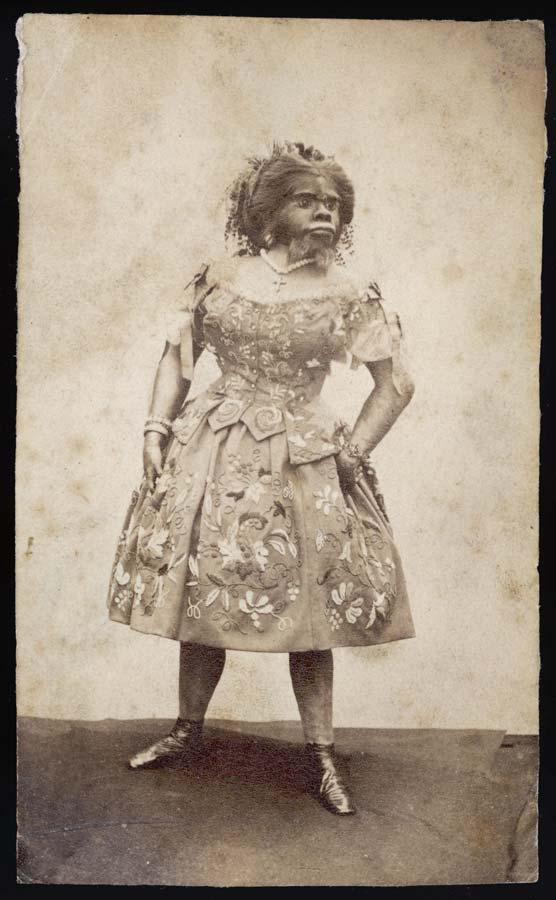 Джулия Пастрана из Мексики, волосатая женщина. Дата: около 1850 г.