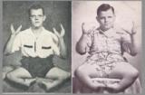 Grady Stiles – The Evil Lobster Boy