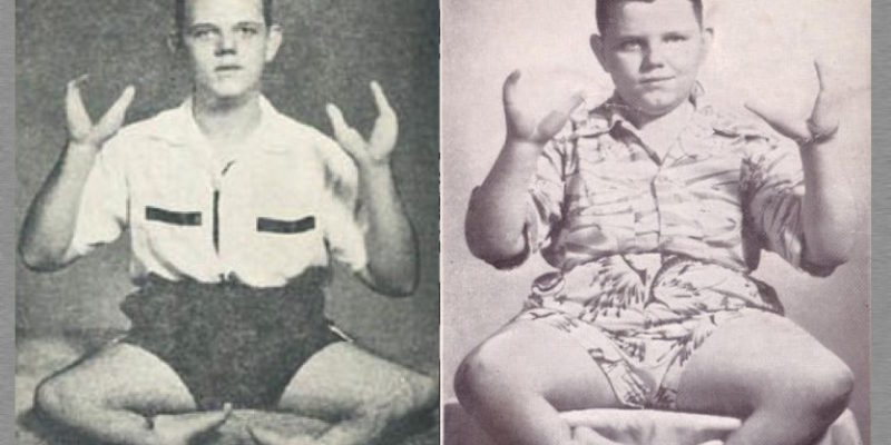 Grady Stiles – The Evil Lobster Boy