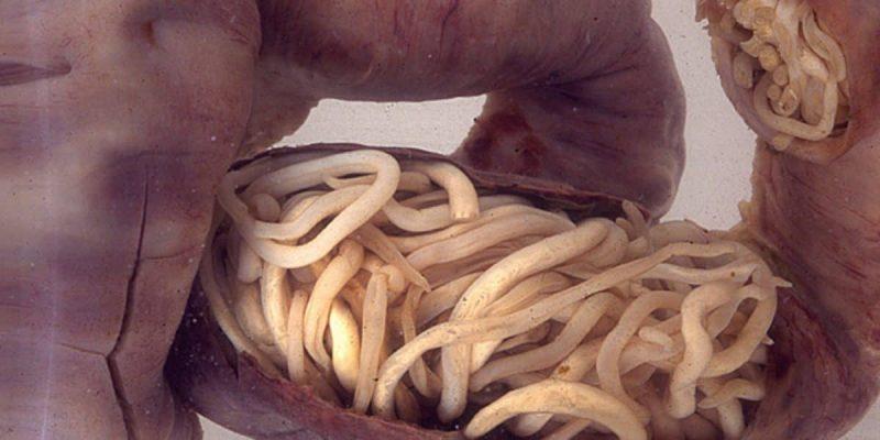 Dangerous Parasites In Humans